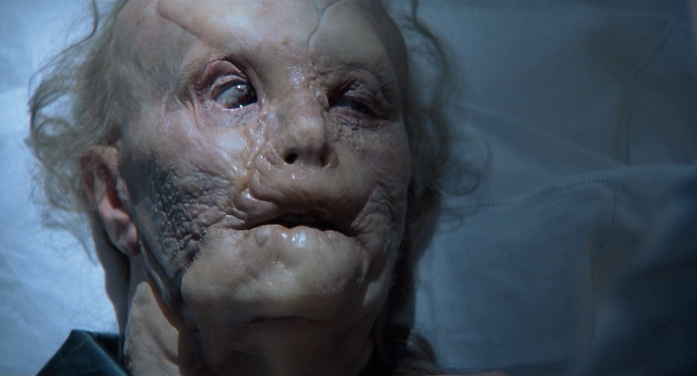 "Gary Oldman as Mason Verger in ""Hannibal"" (2001)"